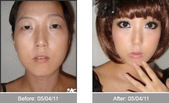 Transformações - Antes e depois 05