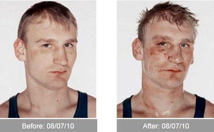 Transformações - Antes e depois 07