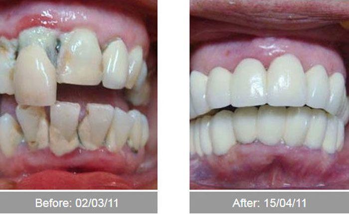 Transformações - Antes e depois 11