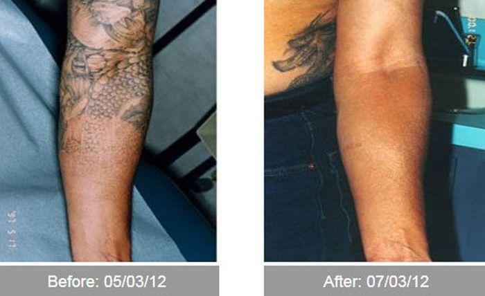 Transformações - Antes e depois 16