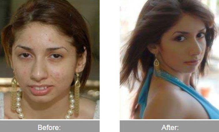 Transformações - Antes e depois 25