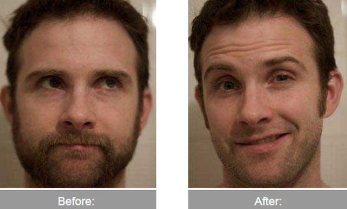 Transformações - Antes e depois 40