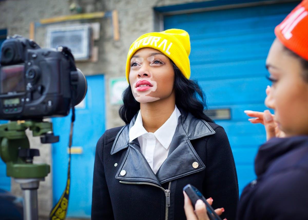 Jovem com vitiligo torna-se uma modelo de sucesso
