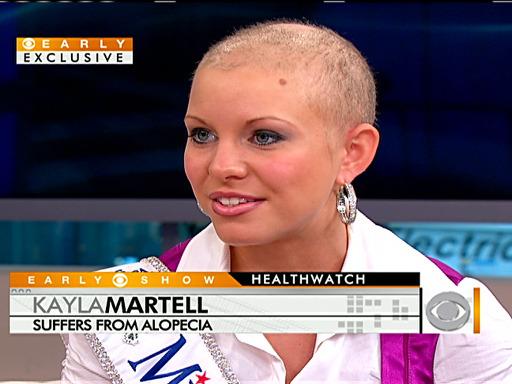 Kayla Martel, a miss careca 02