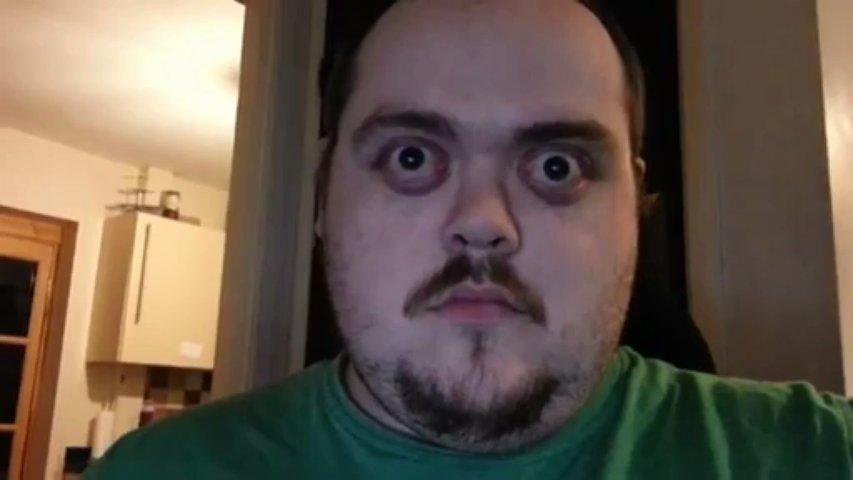 Mr. Zoom assusta  as pessoas com suas performances de arregalar os olhos