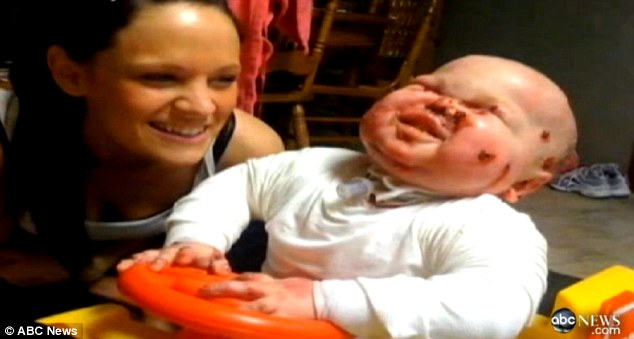 Beb� fica cheio de bolhas e cicatrizes quando � tocado