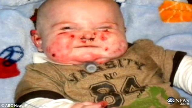 Bebê fica cheio de bolhas e cicatrizes quando é tocado