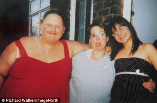 De adolescente gorda a anoréxica 03