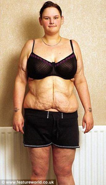 De adolescente gorda a anoréxica 04