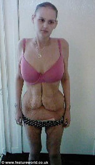 De adolescente gorda a anoréxica 09