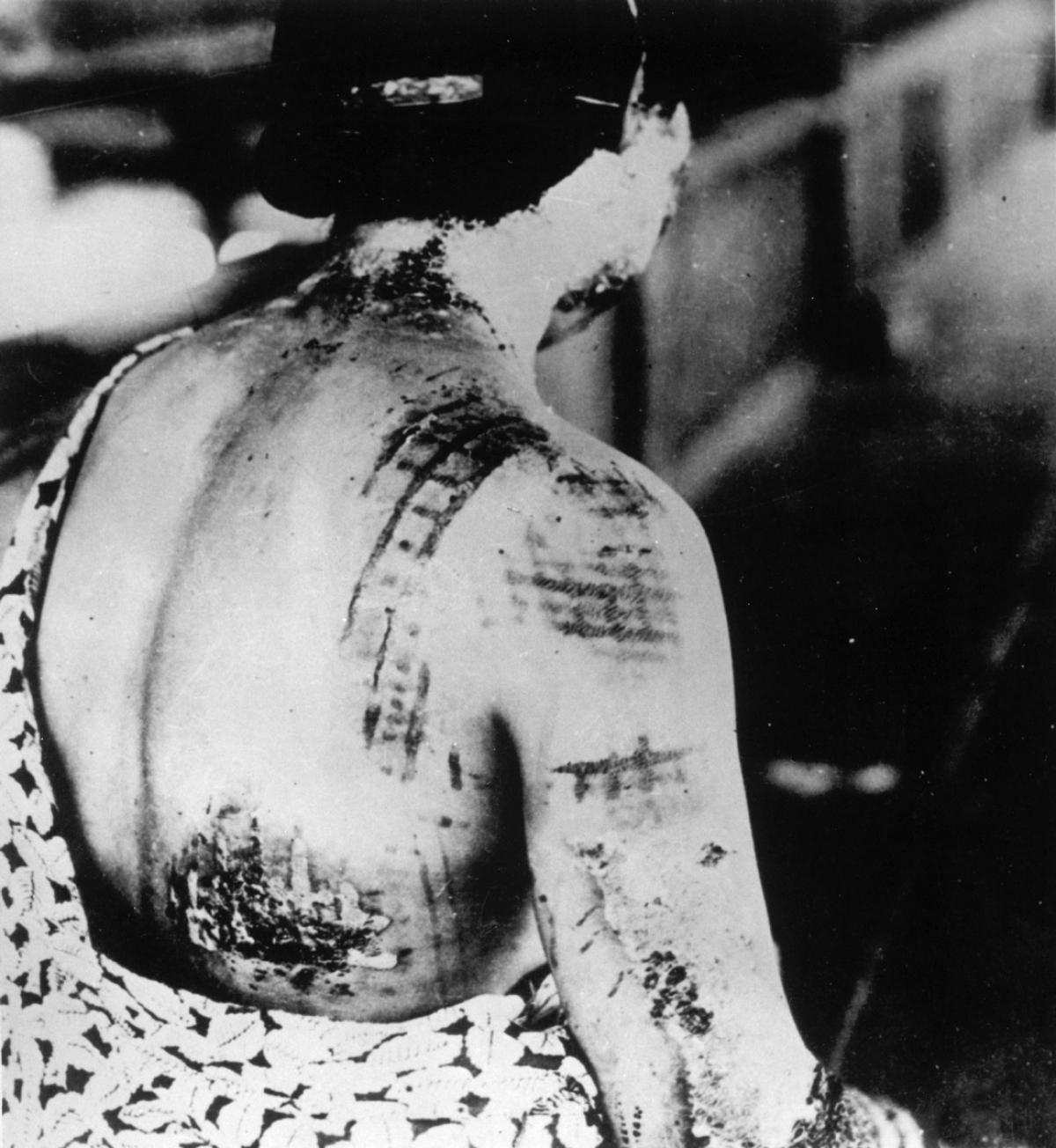 Leia o relato terrível de uma testemunha do bombardeio de Hiroshima 07