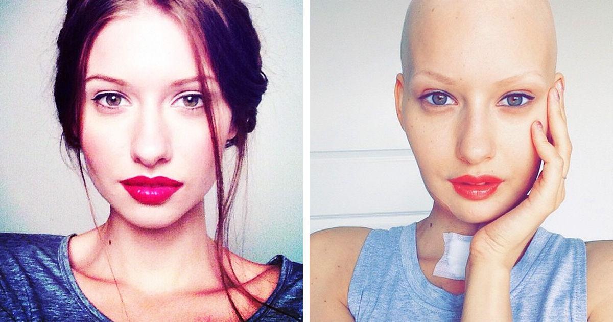 Mulher volta a modelagem depois de perder sua mabíbula para o câncer 01