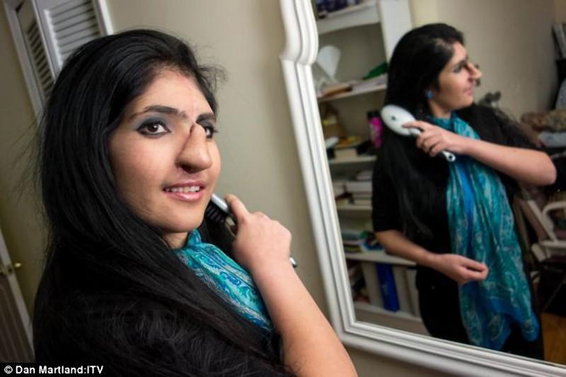 Um novo nariz para Aisha, a jovem que desafiou ao Islã 03