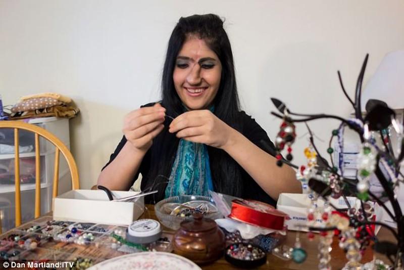 Um novo nariz para Aisha, a jovem que desafiou ao Islã 04