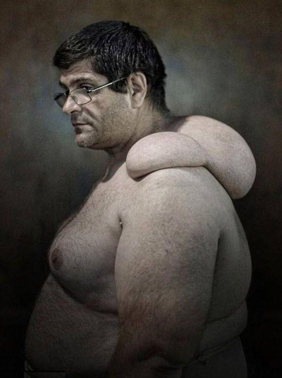 Deformidades físicas em nome da tradição: os Cullatori de Nola 01