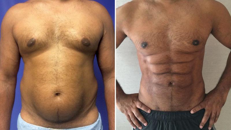 Agora vai: descobrem um método para esculpir a gordura da barriga em forma de tanquinho