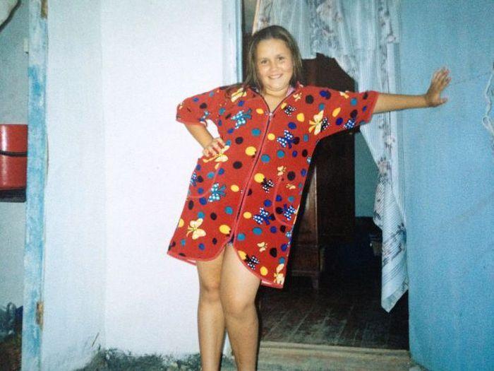 A perda de peso surpreendente de uma garota russa 01