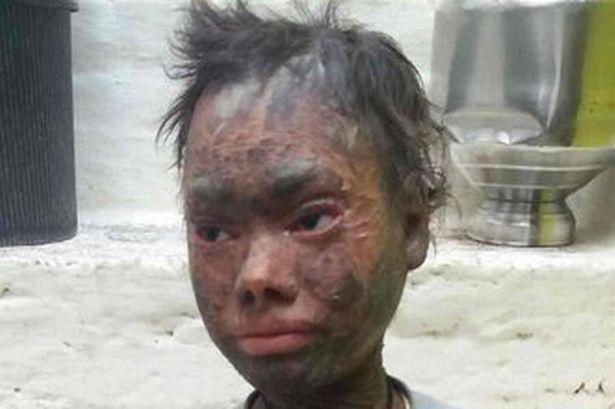 Ela troca de pele a cada 6 semanas e foi expulsa do colégio porque as crianças tem medo dela
